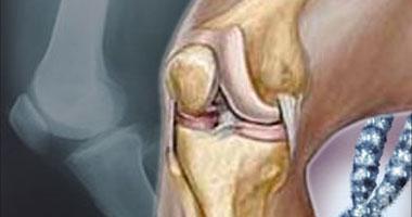 الاصابة بخشونة الركبة