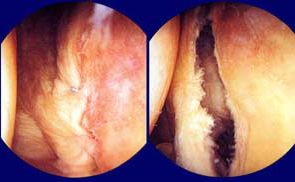 اصابات مفصل الكتف بالصور