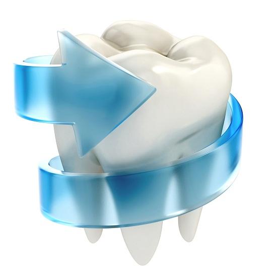 الأسنان للتسوس