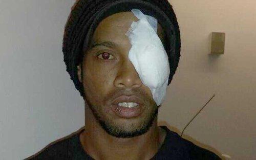 رونالدينيو الاصابة العنيفه